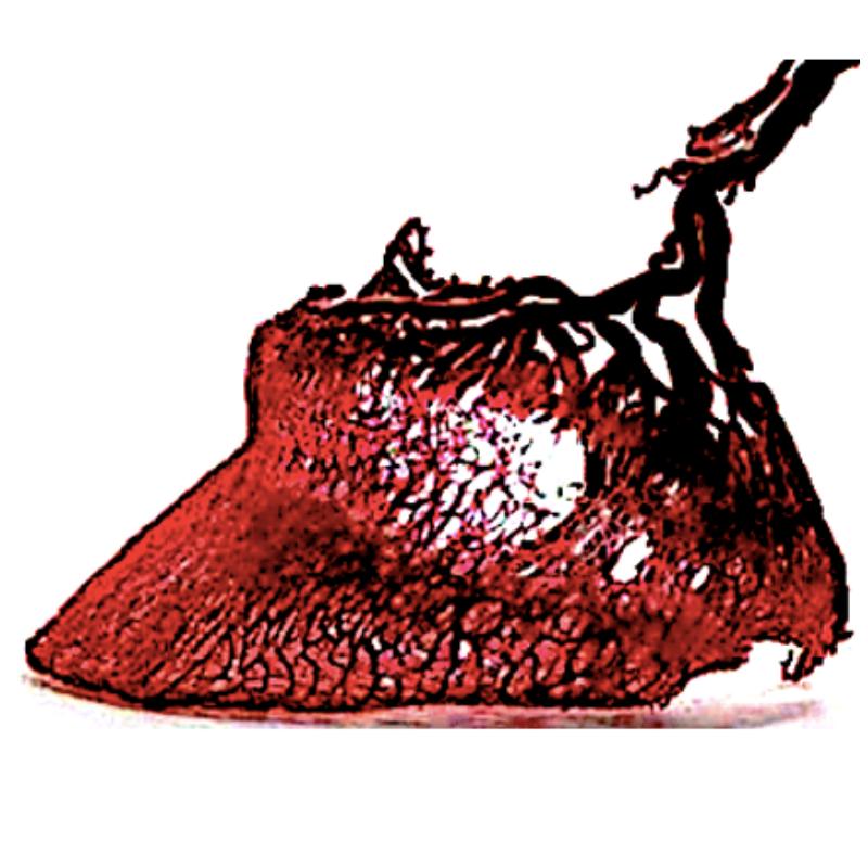Mikrokrążenie w kopycie końcskim